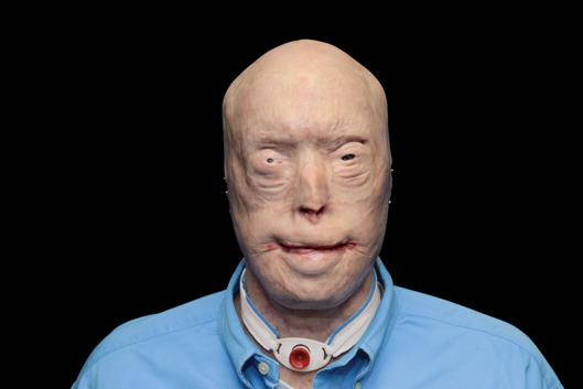 13-face-transplant-2.nocrop.w529.h373